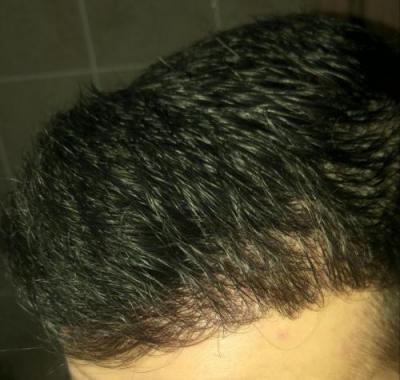 hair-transplant-turkey-istanbul (22)