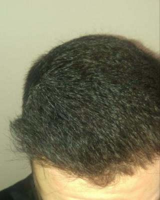 hair-transplant-turkey-istanbul (23)