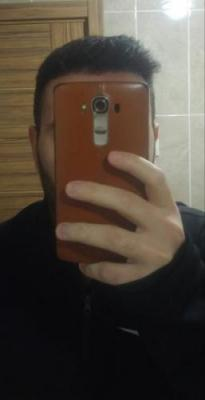 hair-transplant-turkey-istanbul (25)