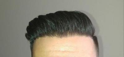 hair-transplant-turkey-istanbul (26)