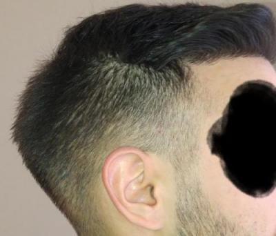 hair-transplant-turkey-istanbul (30)