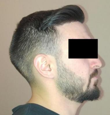 hair-transplant-turkey-istanbul (31)