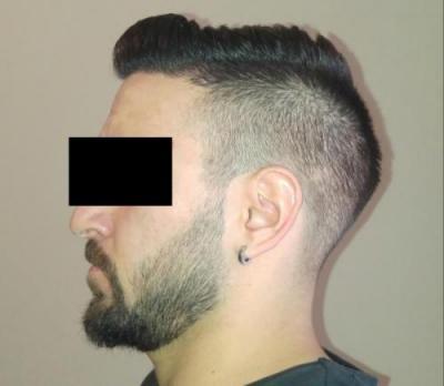 hair-transplant-turkey-istanbul (33)