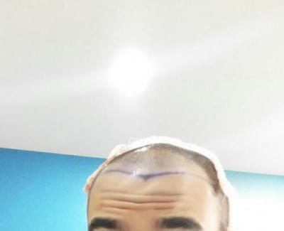 hair-transplant-turkey-istanbul (6)