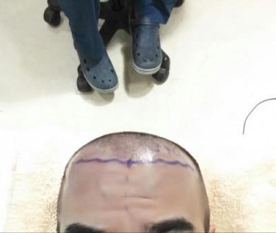 hair-transplant-turkey-istanbul (7)