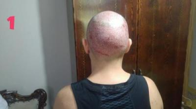 hair-transplant-turkey-istanbul (8)