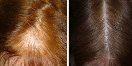 hair-transplant-women