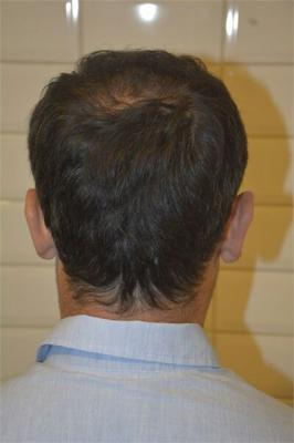 mens-hair-transplant-in-turkey (11)