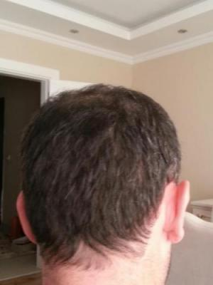 mens-hair-transplant-in-turkey (14)