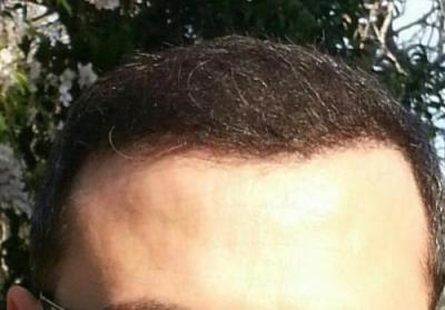 mens-hair-transplant-in-turkey (15)