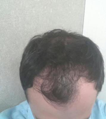 mens-hair-transplant-in-turkey (2)