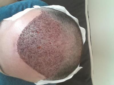 mens-hair-transplant-in-turkey (3)