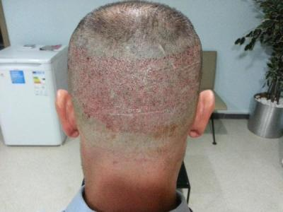 mens-hair-transplant-in-turkey (4)