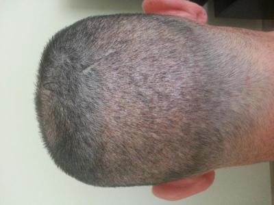 mens-hair-transplant-in-turkey (6)