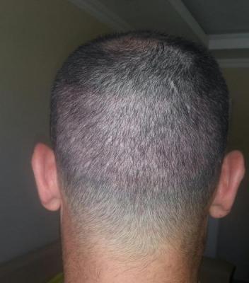 mens-hair-transplant-in-turkey (8)