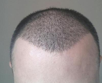mens-hair-transplant-in-turkey (9)