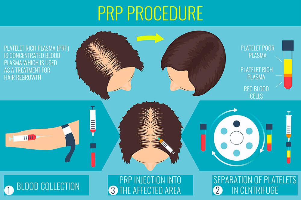 prp-procedure