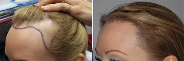 results-hair-transplant-women