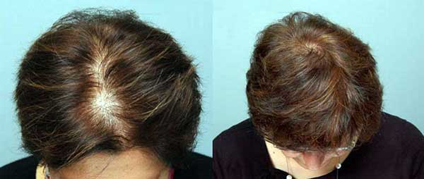 results-of-hair-transplant-in-women