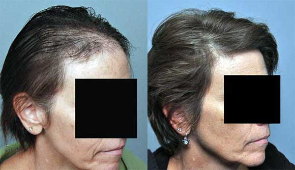 women-hair-transplant-cost