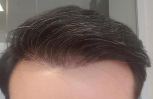 after-hair-transplant (23)