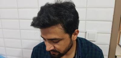beard-hair-transplant (10)