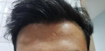 beard-hair-transplant (11)
