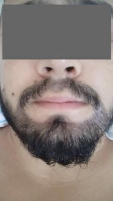 beard-hair-transplant (3)