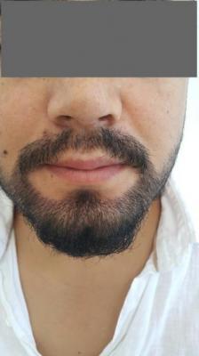 beard-hair-transplant (5)