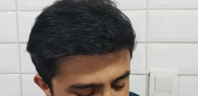beard-hair-transplant (9)