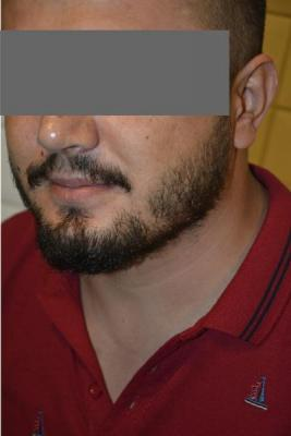 beard-transplant (11)