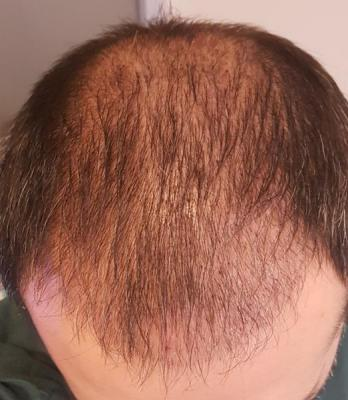 before-hair-transplant (1)