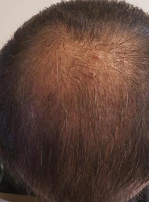 before-hair-transplant (2)