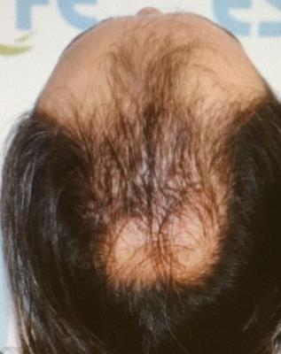 before-hair-transplant (3)