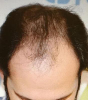 before-hair-transplant (4)