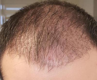 before-hair-transplant (5)
