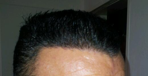 fue-hair-transplant-in-turkey (12)