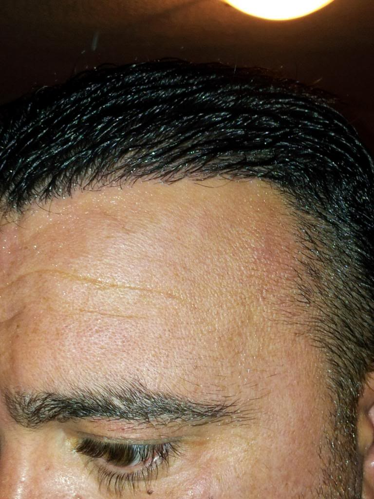 fue-hair-transplant-in-turkey (14)