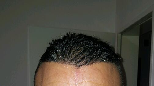 fue-hair-transplant-in-turkey (3)