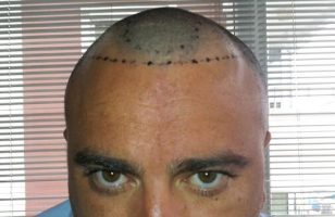 fue-hair-transplant-in-turkey (7)