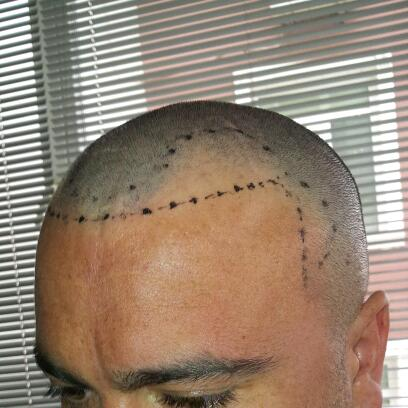 fue-hair-transplant-in-turkey (8)