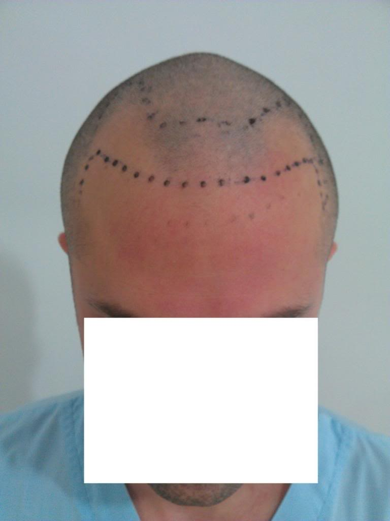 getting-a-hair-transplant-in-turkey (10)