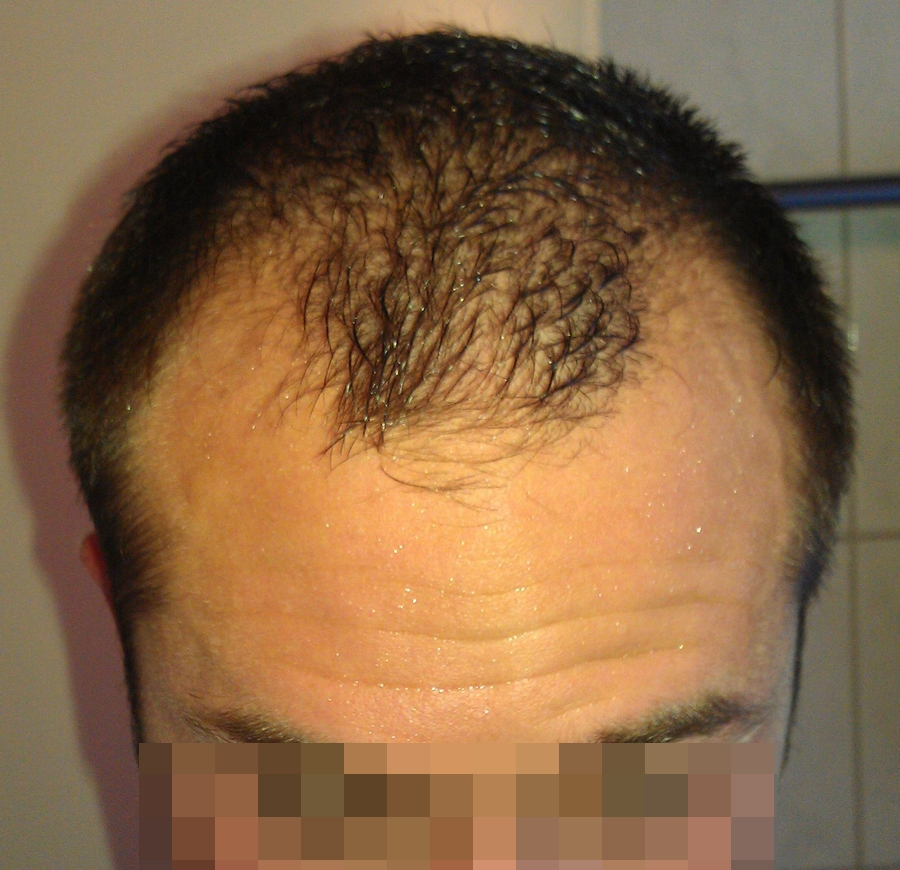 getting-a-hair-transplant-in-turkey (5)
