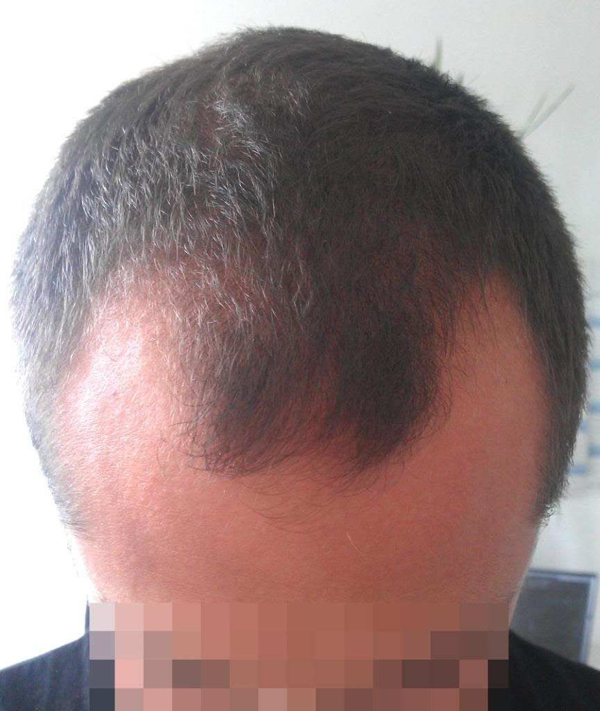 getting-a-hair-transplant-in-turkey (7)