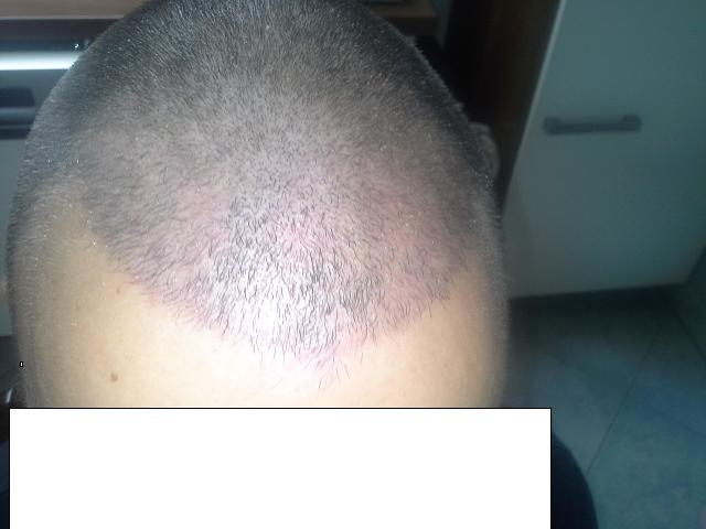 hair-clinic-ankara-turkey (11)
