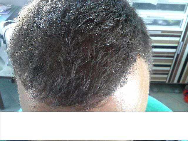 hair-clinic-ankara-turkey (14)