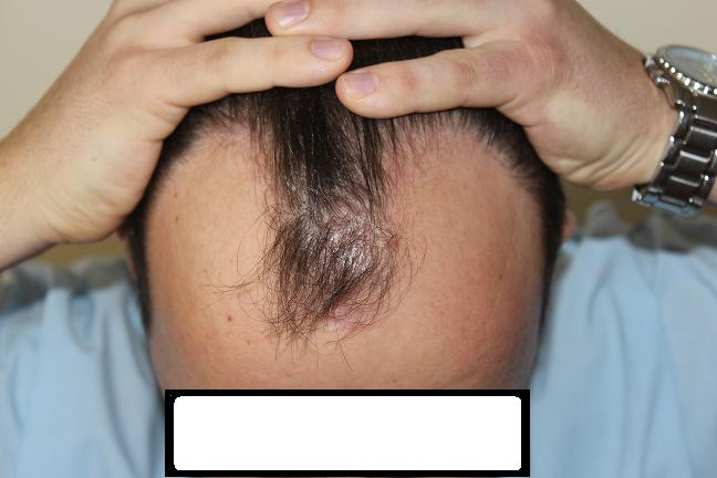 DR.KESER 2450 GRAFTS TURKEY FUE HAIR TRANSPLANT