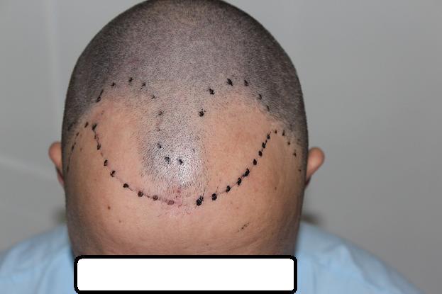 hair-clinic-ankara-turkey (5)