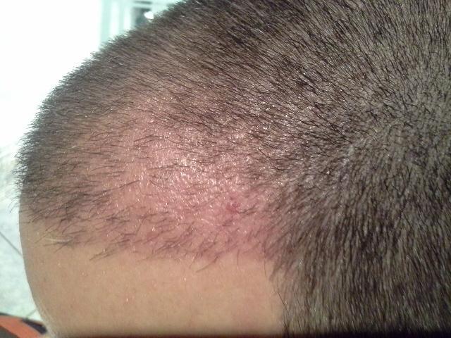 hair-clinic-ankara-turkey (9)