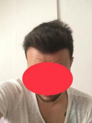 hair-restoration-cost (1)